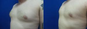 JA-gynecomastia-surgery-nyc-before-after-photo-1-2