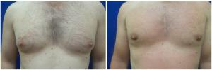 MV-gynecomastia-surgery-nyc-before-after-photo-1-1