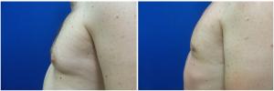 MV-gynecomastia-surgery-nyc-before-after-photo-1-2