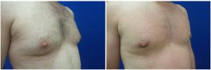 MV-gynecomastia-surgery-nyc-before-after-photo-1-3