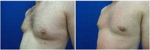 MV-gynecomastia-surgery-nyc-before-after-photo-1-4