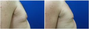MV-gynecomastia-surgery-nyc-before-after-photo-1-5